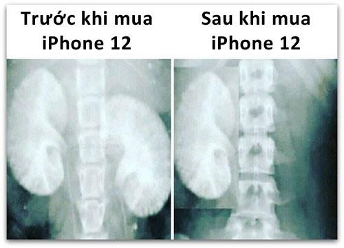 Ảnh X quang trước và sau khi mua iPhone 12: thiếu mất 1 quả thận