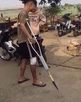 Thanh niên gãy chân chống nặng có gắn phóng lợn